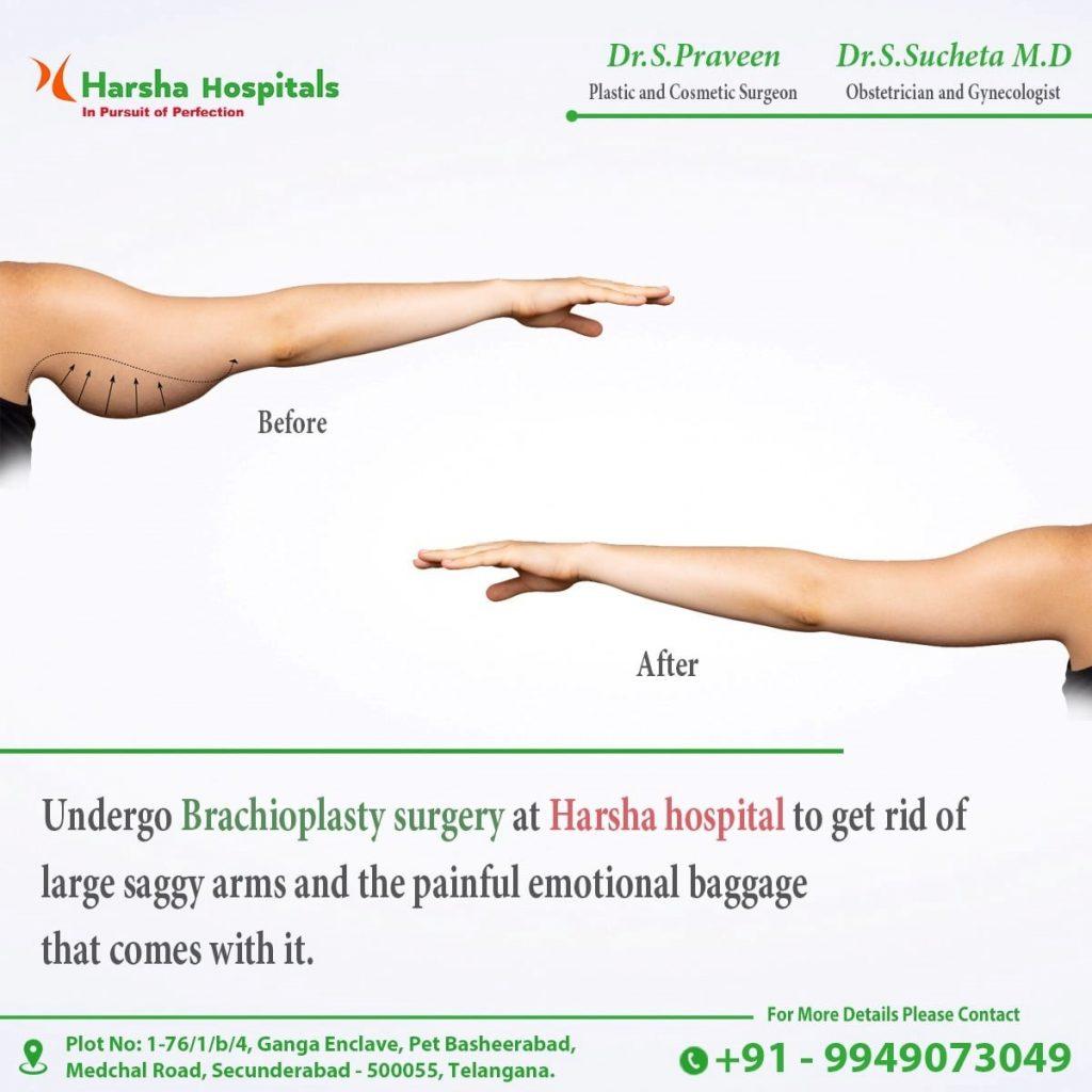 Harsha hospitals secunderabad